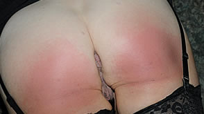 Erica Scott's very red sore bare bottom
